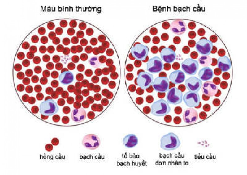 Bài 14: Bạch cầu - Miễn dịch (Sinh học 8)